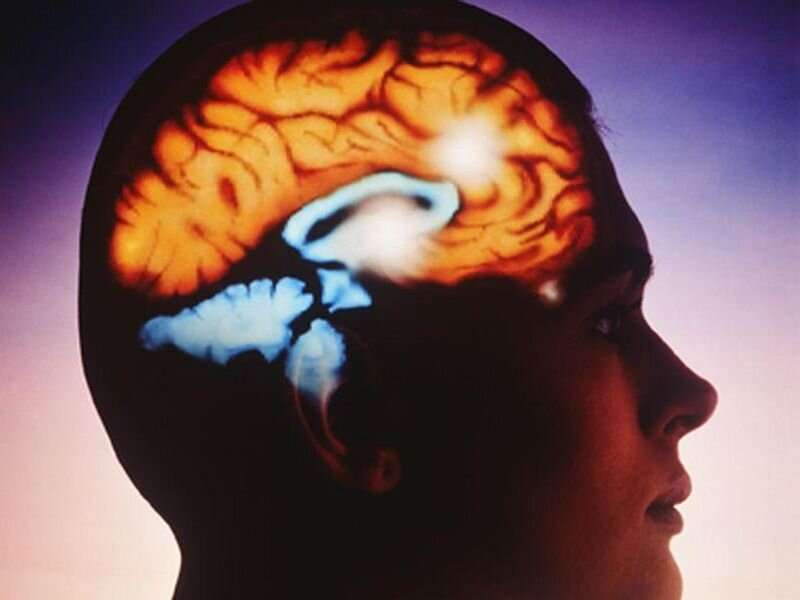 First signs of MS may often go undiagnosed